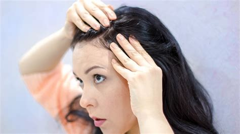 women hair cut to cover bald spot on top of head when your hair won t cover your psoriasis psoriasis