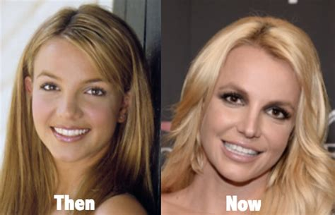 Britneys To Toe Plastic Surgery by 101 Before And After Plastic Surgery Starfluff