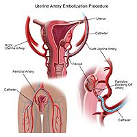 how long for uterus to shrink after c section uterine artery embolization discharge causes symptoms