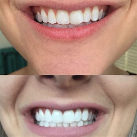 activated charcoal teeth whitener beauty charcoal