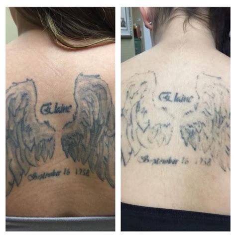 pico tattoo removal before after just one session with our pico technology