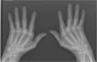 nih research leads to new rheumatoid arthritis nih