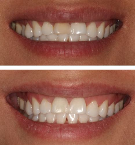 teeth whitening park city ut teeth bleaching salt lake