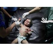 Photos From The Israeli Palestine Conflict In Gaza
