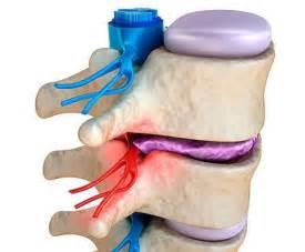 hernie discale cervicale sympt 244 mes traitements