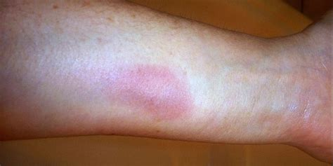 has itchy skin itchy skin rashes on legs www pixshark images galleries with a bite