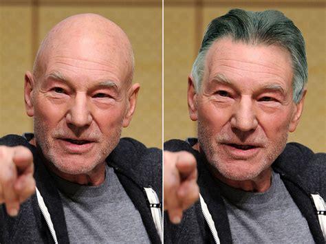 robert herjavec hair transplant is robert herjavec bald is robert herjavec bald herjavec