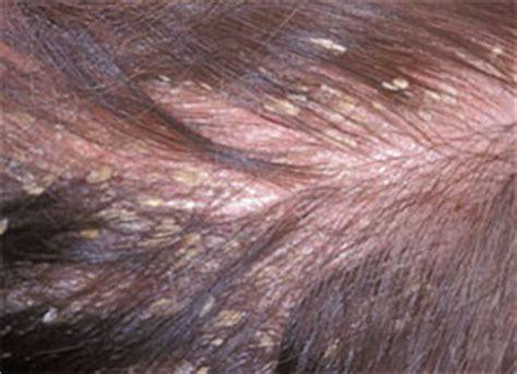 dermatitis en el cuero cabelludo reelance dermatitis seborreica