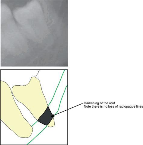 Biggy Ct 350 By Kjperabot mandibular nerve injury