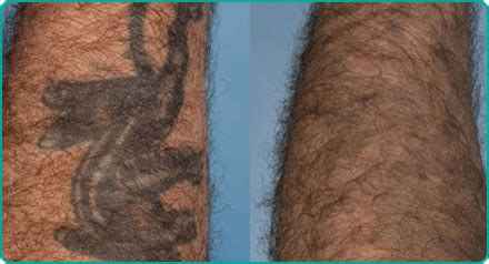 tattoo removal on the nhs single colour removal bristol laser centre