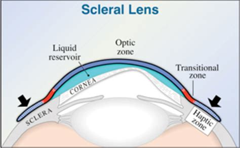 scleral lenses fact or fiction