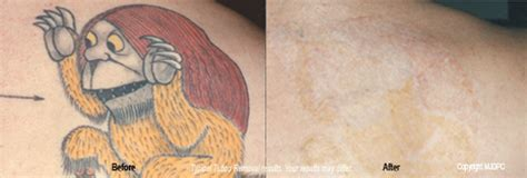 tattoo removal new orleans tattoo removal