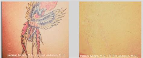tattoo removal angel laser tattoo removal in london the angel laser clinic london