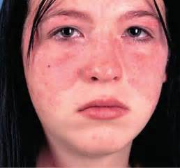 lupus dermatological diseases epharmapedia