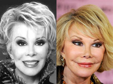 celebs who havent had neck lifts joan rivers celebrity plastic surgery disasters