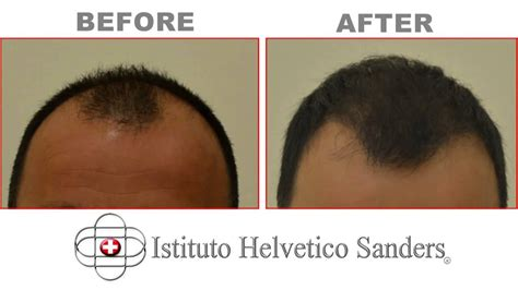 fue results with short hair fue hair transplant frontal area results youtube