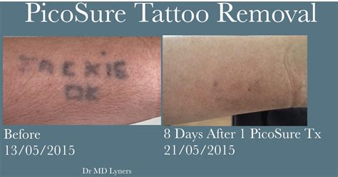 tattoo removal ireland removal fading before cover up with picosure
