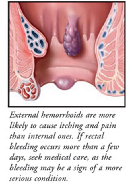 Can Hemorrhoids Cause Blood In Stools by Hemorrhoids