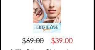 Herpes Detox Cure by David Mckenna S Regrow Hair Protocol Review Discount