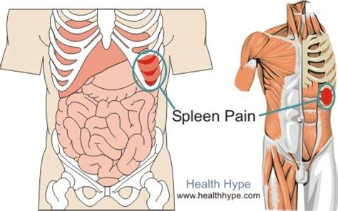 where is your spleen located in your diagram spleen location with pictures and causes