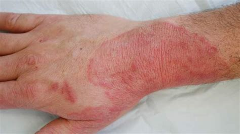 fungal skin infections ringworm fungal infections symptoms causes diagnosis and treatments