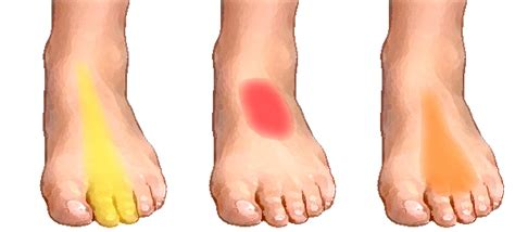 Bottom Middle Foot Burning From Detoxing by What Causes Of Foot Symptoms