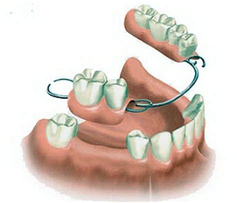 dentiera mobile costo protesi scheletrata laboratorio protesi dentarie bromadent