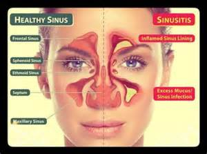 How can medical qigong help your sinus infection bhakti wellness