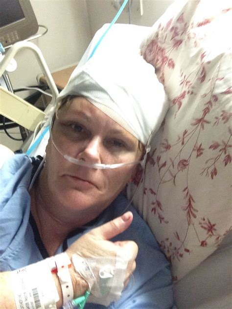 hair cut after brain surgery 20 things you can expect after brain surgery the what