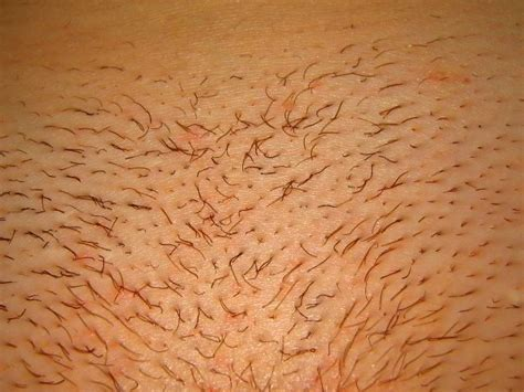 should thick hair pubic hair be waxed for women first signs of shedding after laser hair removal treatment