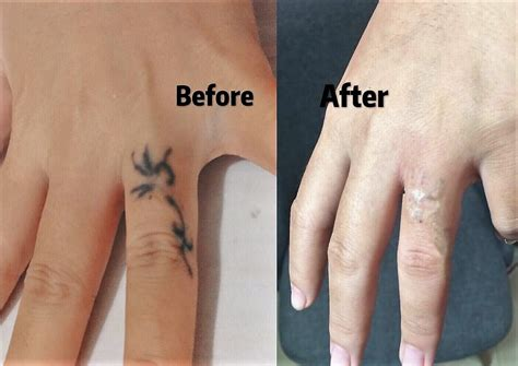 100 finger tattoo removal reset 100 removal on finger picoway the most