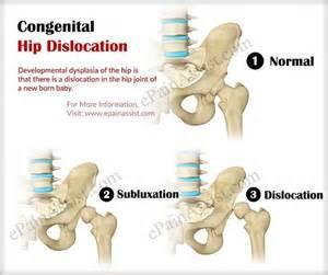 hip dysplasia home treatment congenital hip dislocation or developmental dysplasia of