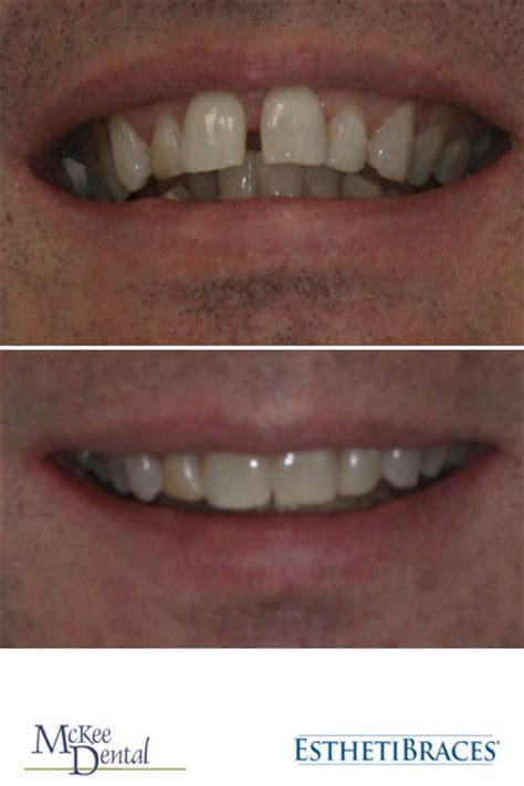 invisalign straightens  smile mckee dental