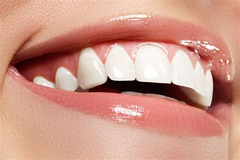 zoom whitening beverly hills ca neil hadaegh dds