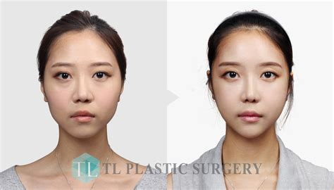 v shape jaw surgery tl plastic surgery clinic korea before after facial