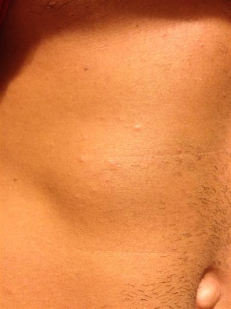 quot went to tanning bed now i have welts bumps on my stomach
