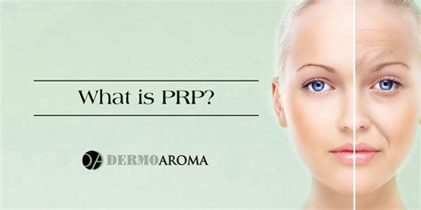 what is what is platelet rich plasma prp dermoaroma