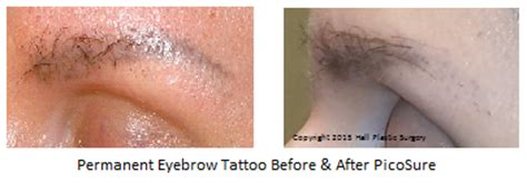 permanent makeup tattoo removal style guru fashion