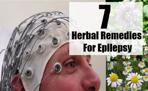 home remedies for seizures 7 herbal remedies for epilepsy search home remedy