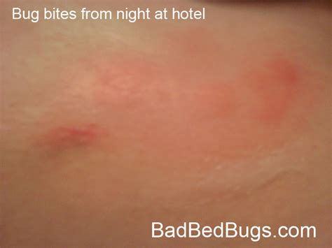 itching at night in bed itching at night in bed 28 images royalty free bedbug