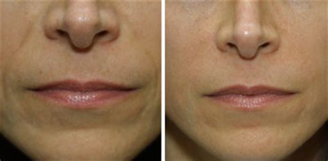 laser wrinkle removal before and after before and after wrinkle remover pictures radiesse