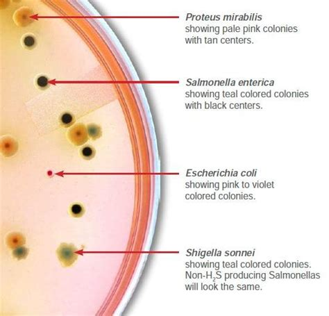 Stool Culture For Salmonella by 2016 May Hardy Diagnostics