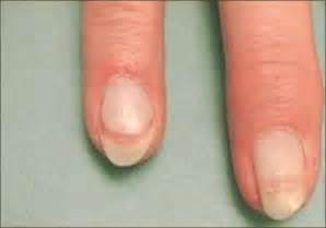 nail dyschromias mendiratta v jain a indian j dermatol