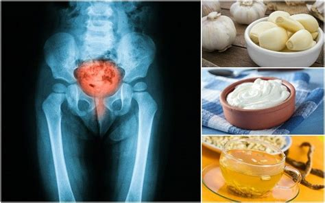 12 home remedies for utis without using antibiotics