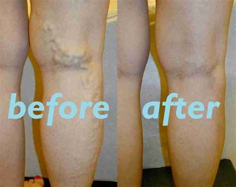 11 home remedies for your varicose veins stethnews