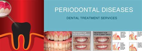 low cost dental cleaning indian home remedies for gum disease