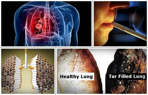 Lung Detox Side Effects by Lung Detoxification Review The Is Exposed