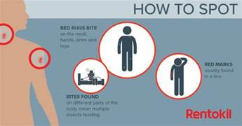 Bed Bug Bites Pictures Images Bed Bug Bites What You Need To Know