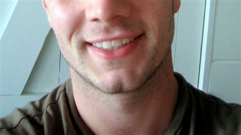 remedy fr cleft chin cleft chin causes removal and implants