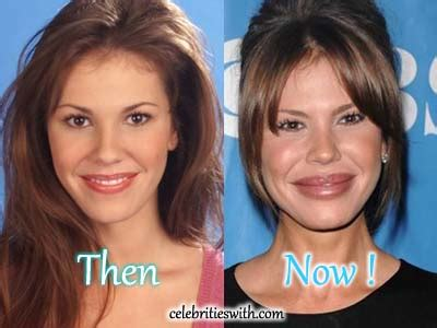nikki cox before and after plastic surgery nikki cox plastic surgery overdone fillers before after